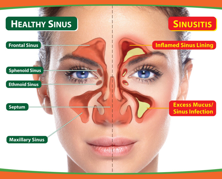 How Chiropractic Care Can Help Relieve Sinus Pressure ...